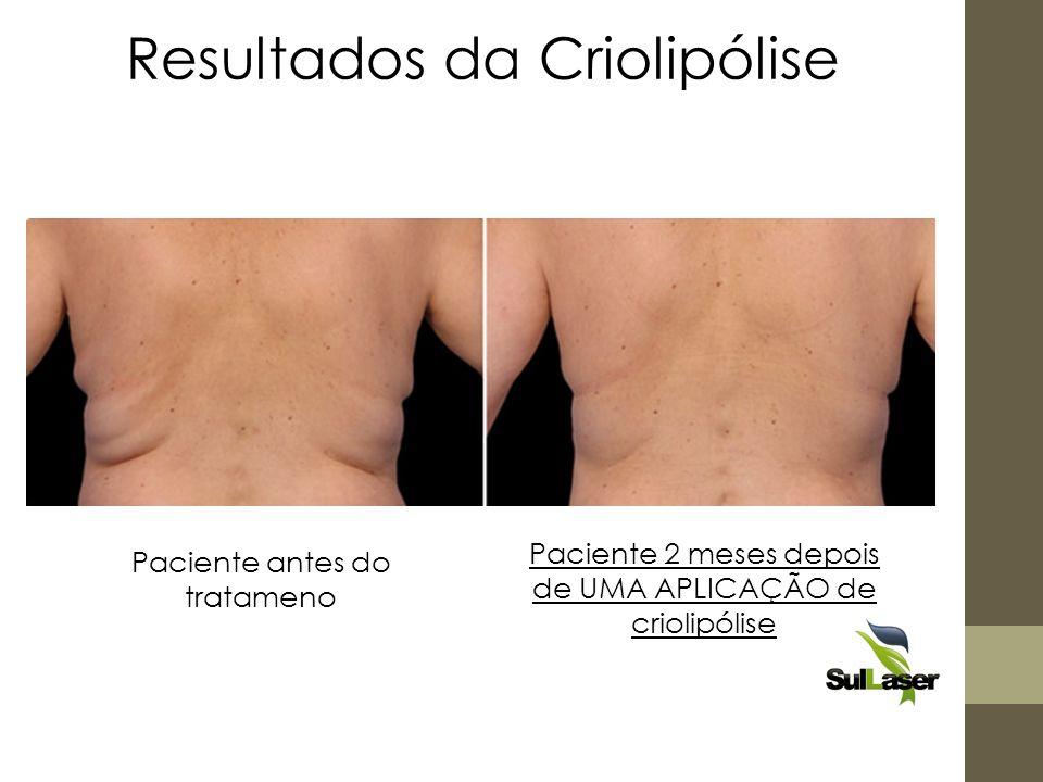 Paciente antes do tratameno Paciente 2 meses depois de UMA APLICAÇÃO de criolipólise