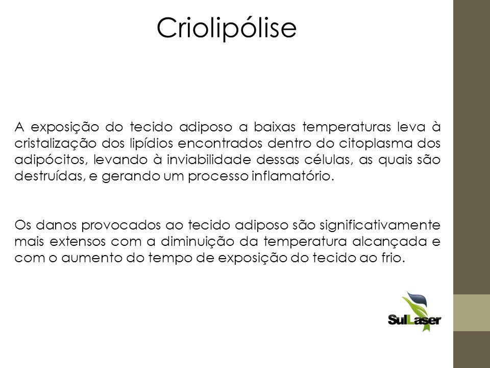 A exposição do tecido adiposo a baixas temperaturas leva à cristalização dos lipídios encontrados dentro do citoplasma dos adipócitos, levando à invia