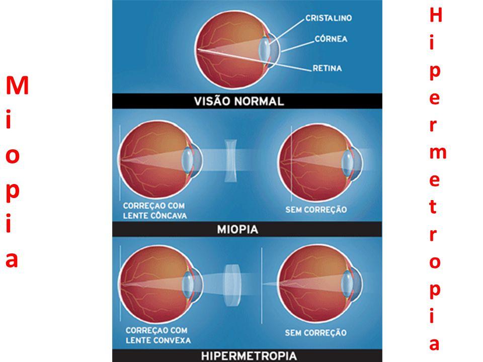 MiopiaMiopia HipermetropiaHipermetropia
