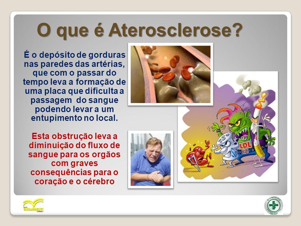 O que é Aterosclerose? É o depósito de gorduras nas paredes das artérias, que com o passar do tempo leva a formação de uma placa que dificulta a passa