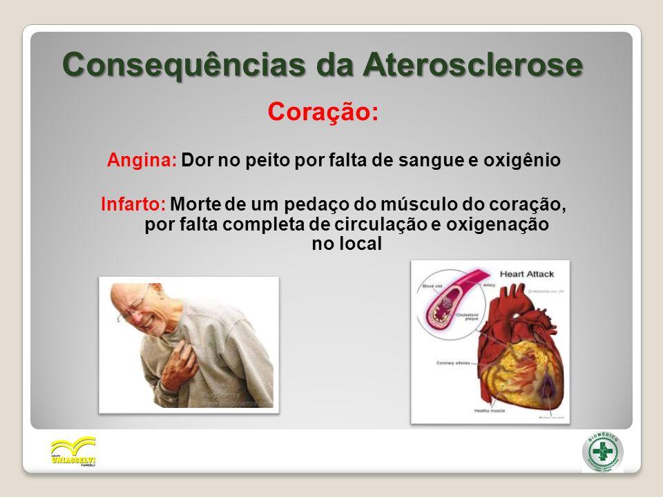 Consequências da Aterosclerose Coração: Angina: Dor no peito por falta de sangue e oxigênio Infarto: Morte de um pedaço do músculo do coração, por fal