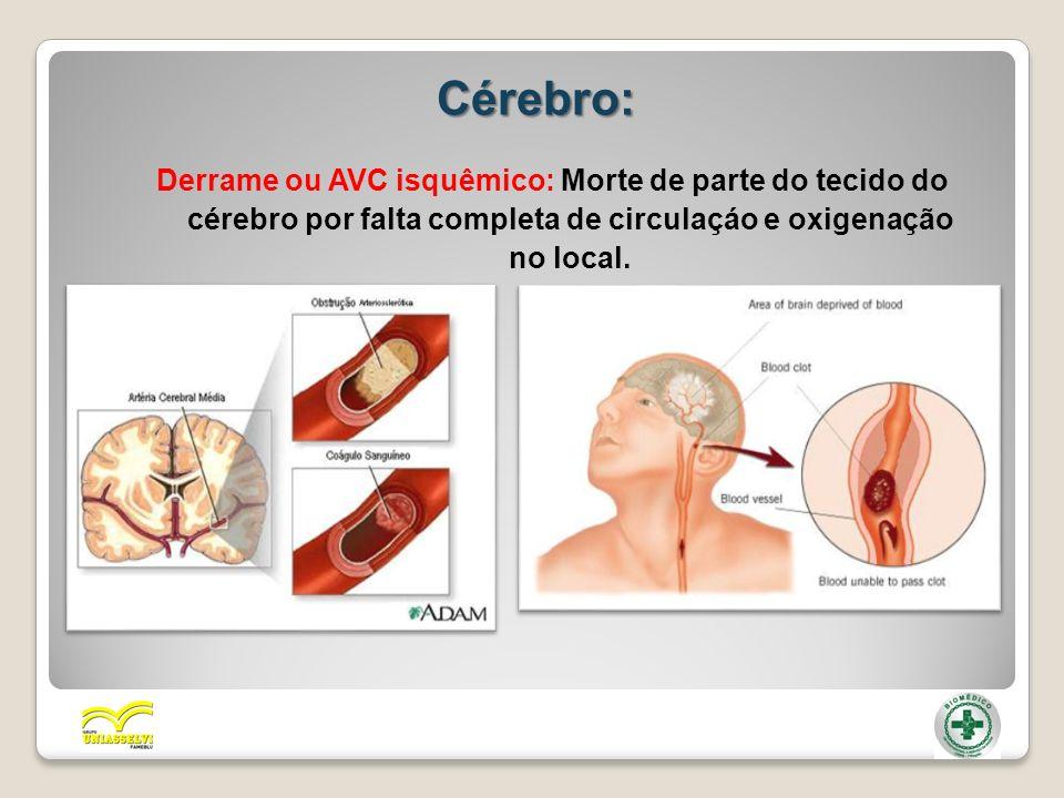 Cérebro: Derrame ou AVC isquêmico: Morte de parte do tecido do cérebro por falta completa de circulaçáo e oxigenação no local.