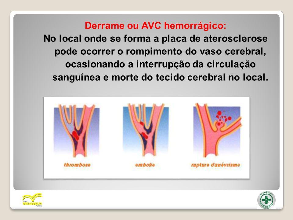 Derrame ou AVC hemorrágico: No local onde se forma a placa de aterosclerose pode ocorrer o rompimento do vaso cerebral, ocasionando a interrupção da c