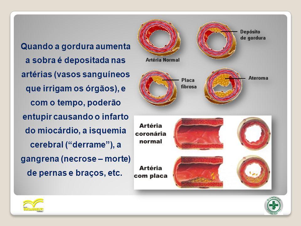 Quando a gordura aumenta a sobra é depositada nas artérias (vasos sanguíneos que irrigam os órgãos), e com o tempo, poderão entupir causando o infarto