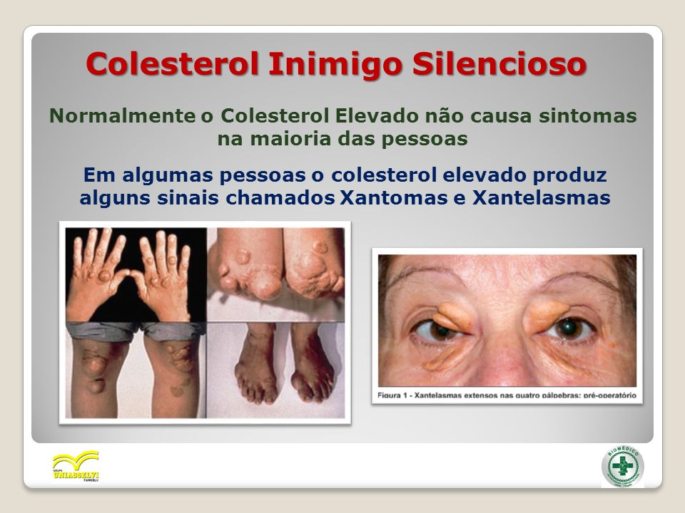 Colesterol Inimigo Silencioso Normalmente o Colesterol Elevado não causa sintomas na maioria das pessoas Em algumas pessoas o colesterol elevado produ