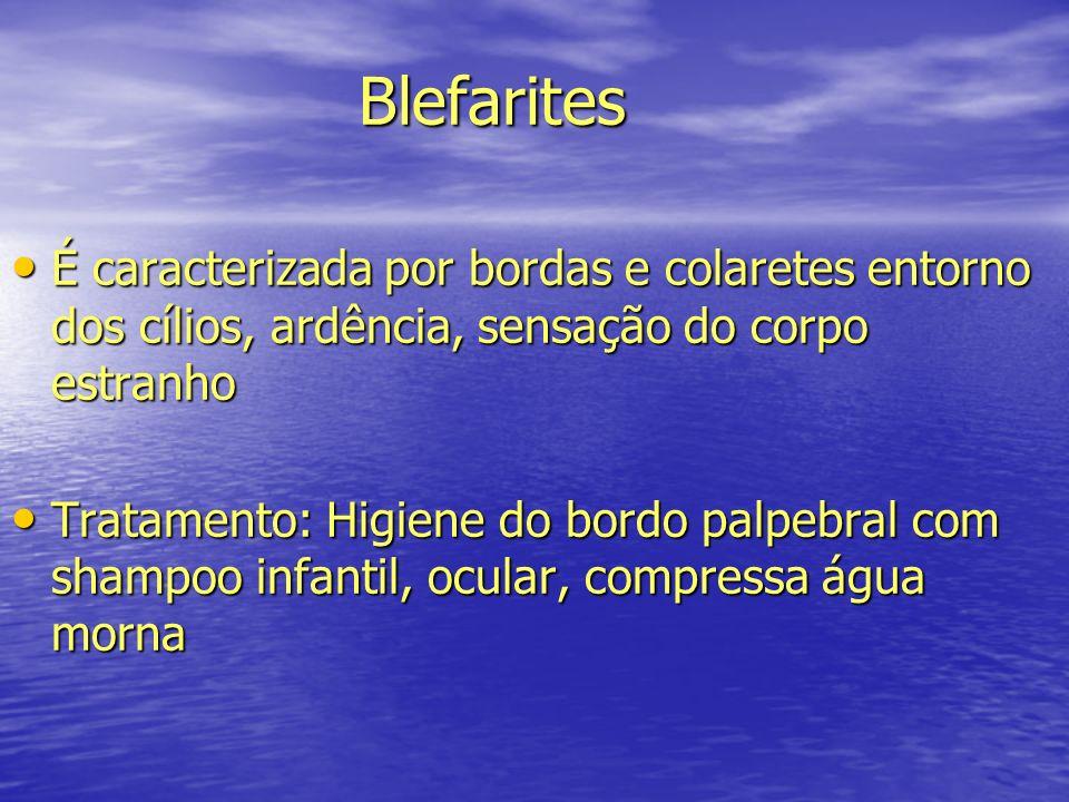 Blefarites Blefarites É caracterizada por bordas e colaretes entorno dos cílios, ardência, sensação do corpo estranho É caracterizada por bordas e col