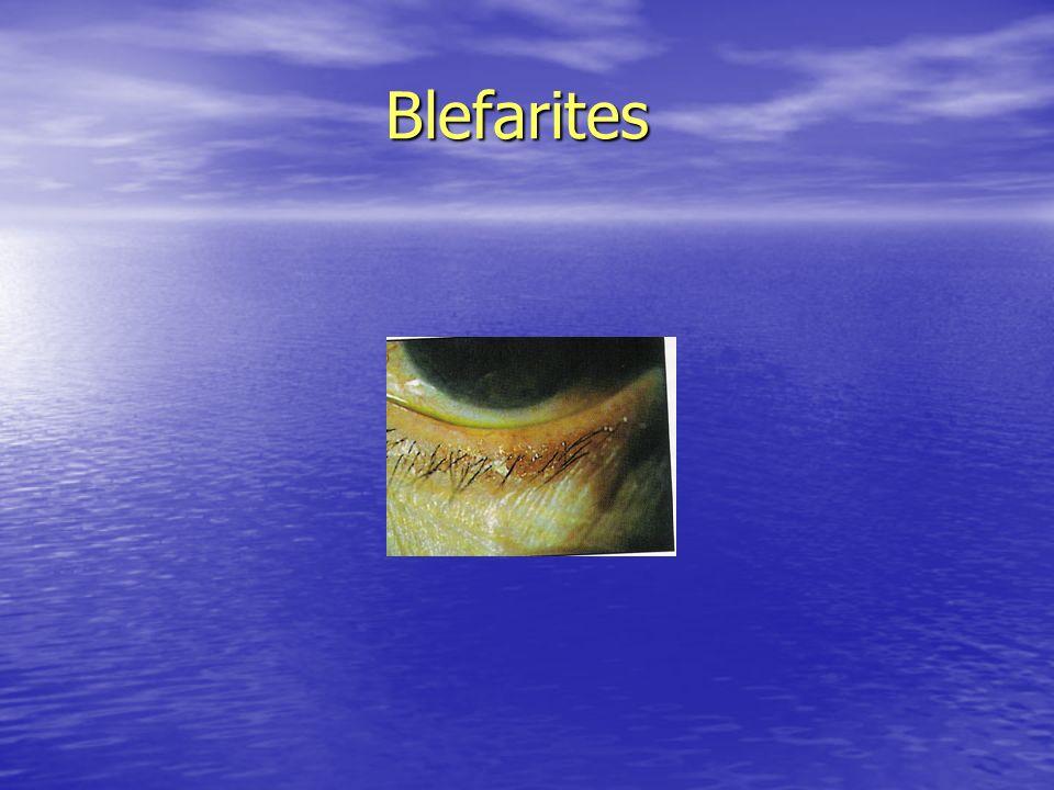 Blefarites Blefarites