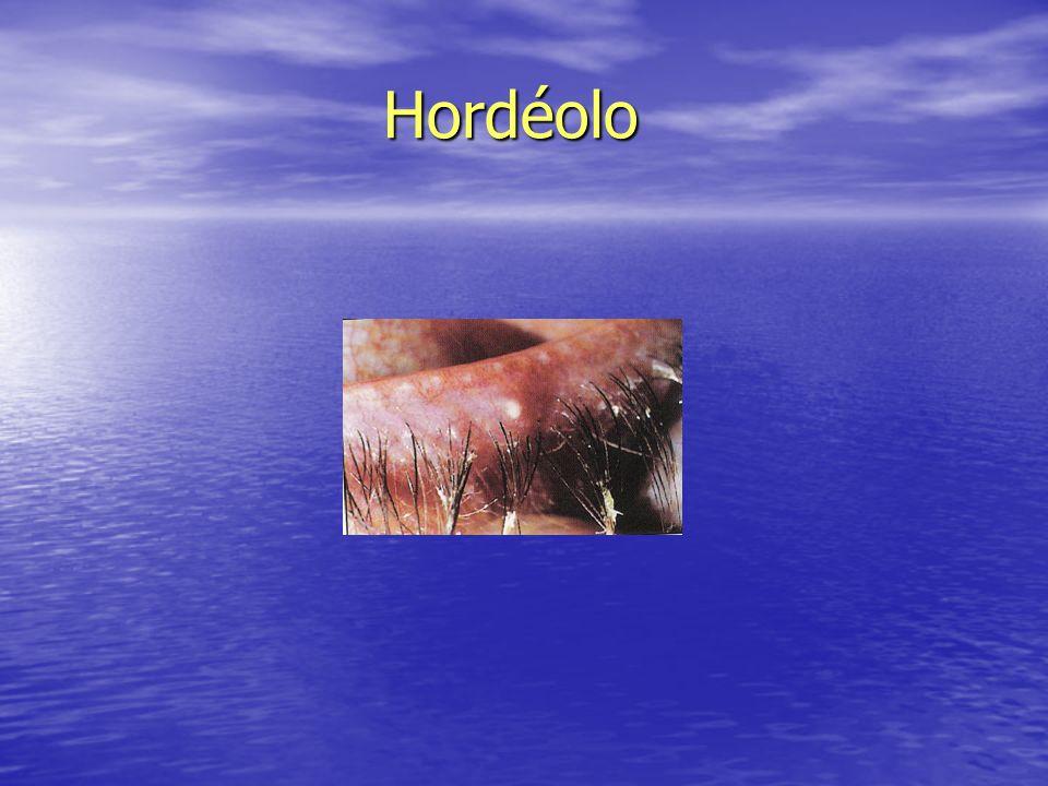 Hordéolo Hordéolo