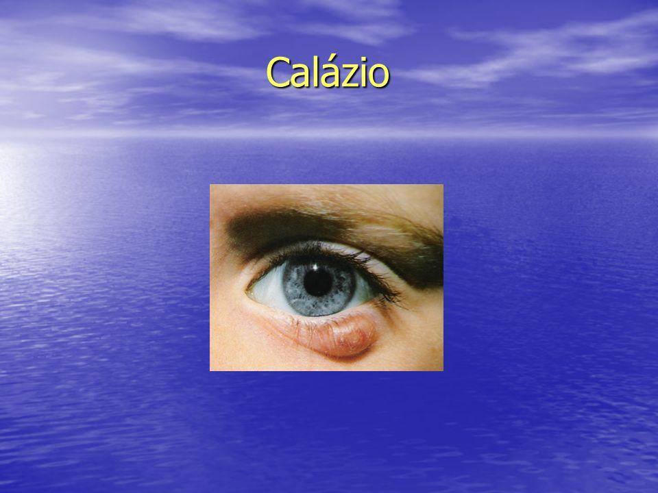 Calázio Calázio