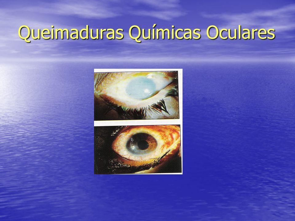 Queimaduras Químicas Oculares