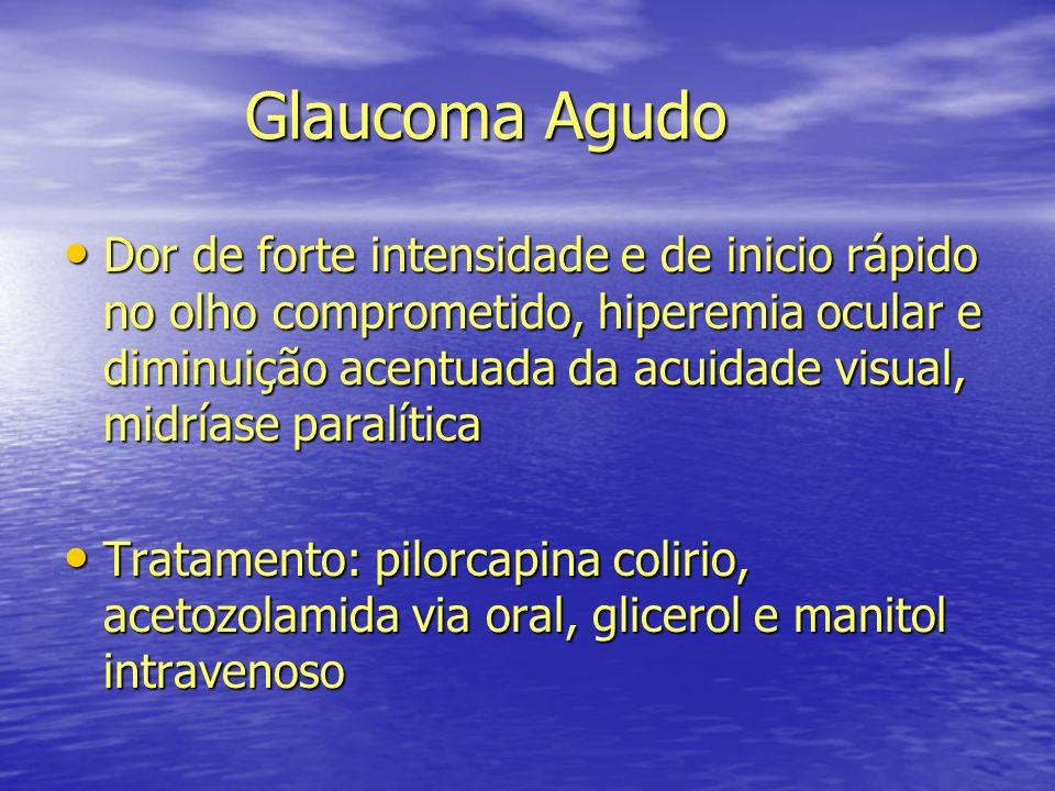 Glaucoma Agudo Glaucoma Agudo Dor de forte intensidade e de inicio rápido no olho comprometido, hiperemia ocular e diminuição acentuada da acuidade vi