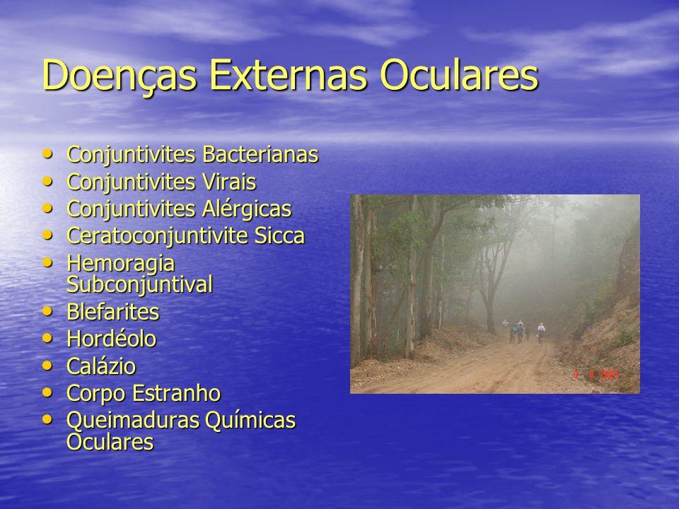Doenças Externas Oculares Conjuntivites Bacterianas Conjuntivites Bacterianas Conjuntivites Virais Conjuntivites Virais Conjuntivites Alérgicas Conjun