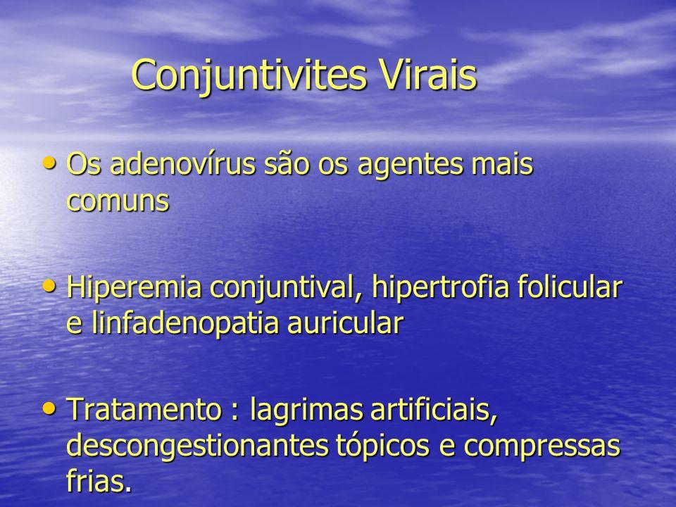 Conjuntivites Virais Conjuntivites Virais Os adenovírus são os agentes mais comuns Os adenovírus são os agentes mais comuns Hiperemia conjuntival, hip