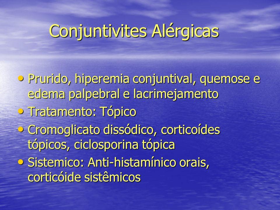 Conjuntivites Alérgicas Conjuntivites Alérgicas Prurido, hiperemia conjuntival, quemose e edema palpebral e lacrimejamento Prurido, hiperemia conjunti