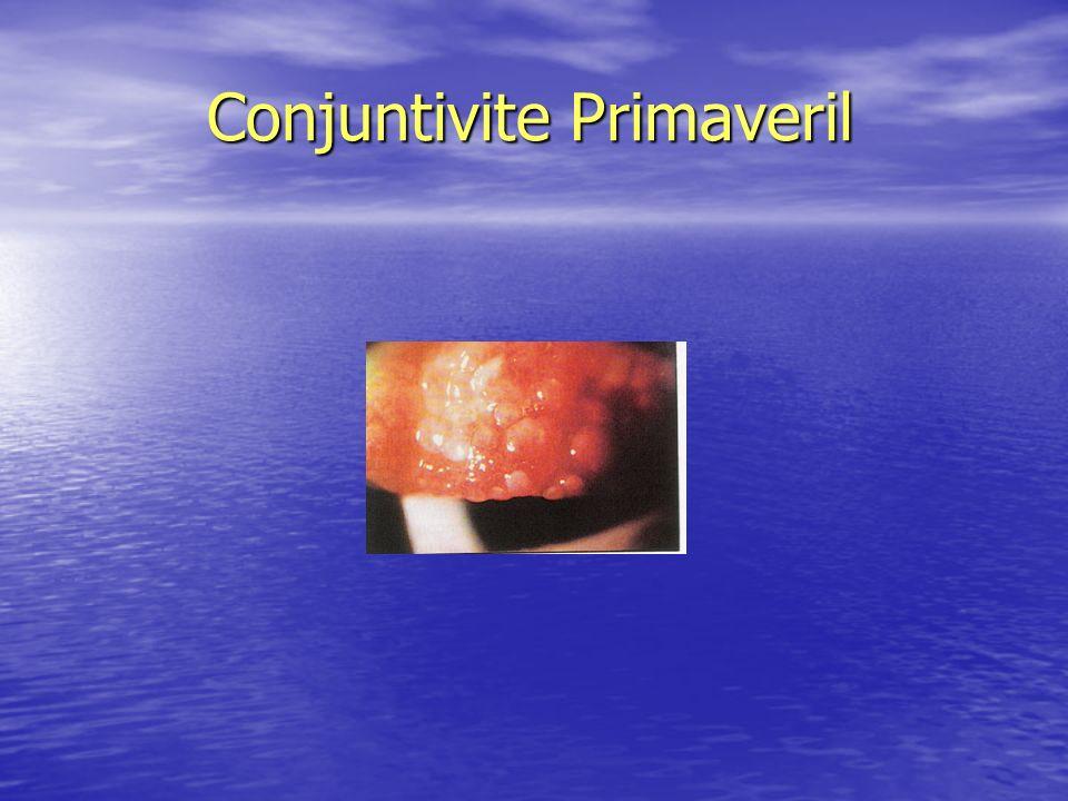 Conjuntivite Primaveril Conjuntivite Primaveril
