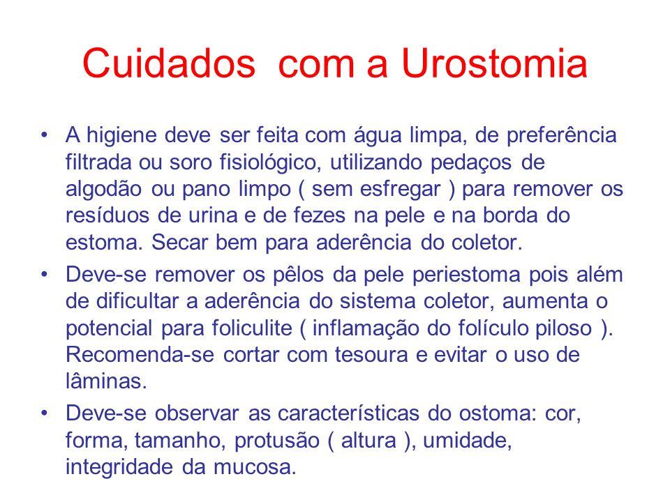 Cuidados com a Urostomia A higiene deve ser feita com água limpa, de preferência filtrada ou soro fisiológico, utilizando pedaços de algodão ou pano l