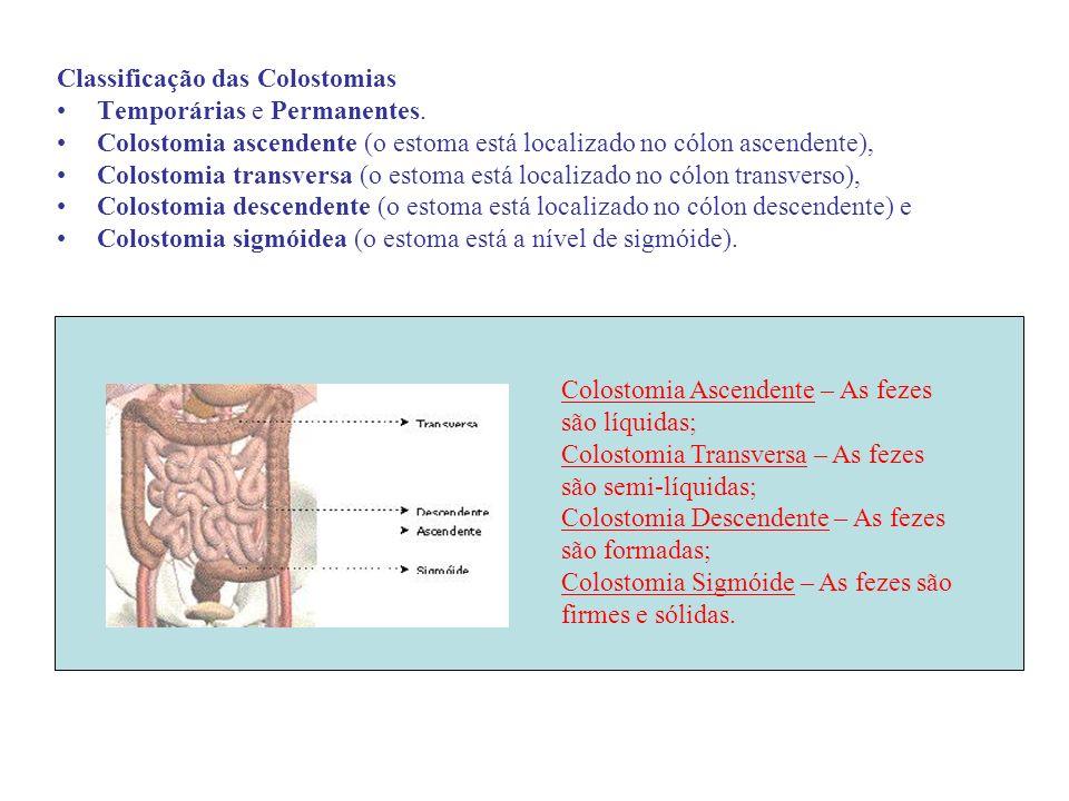 Classificação das Colostomias Temporárias e Permanentes. Colostomia ascendente (o estoma está localizado no cólon ascendente), Colostomia transversa (