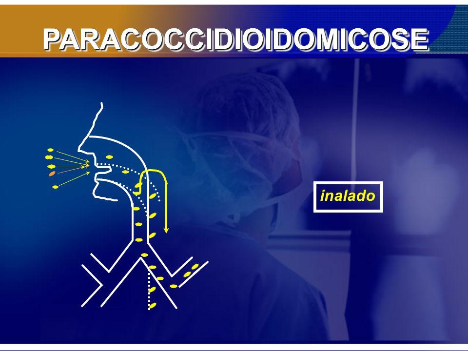 PARACOCCIDIOIDOMICOSE Itraconazol: 2cp/dia - 6 – 9 meses - refeições Efetivo: 93% –Tratamento mais curto –Custo –*** absorção: requer acidez com alimentos –cp.