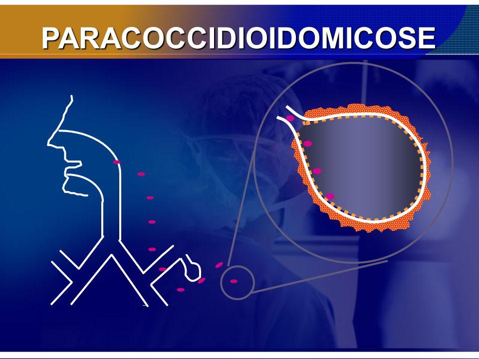 PARACOCCIDIOIDOMICOSE Cetoconazol: 200 – 400 mg/dia 2cp dia 3 meses 1 cp/dia 9 meses = 1 ano Recidiva <10% –Efeitos colaterais: Hepatite Ginecomastia, < libido - Bloqueio síntese testosterona (reversíveis) Teratogênico 30 cp/200 mg: 51,00 reais 1 ano: 1.000,00