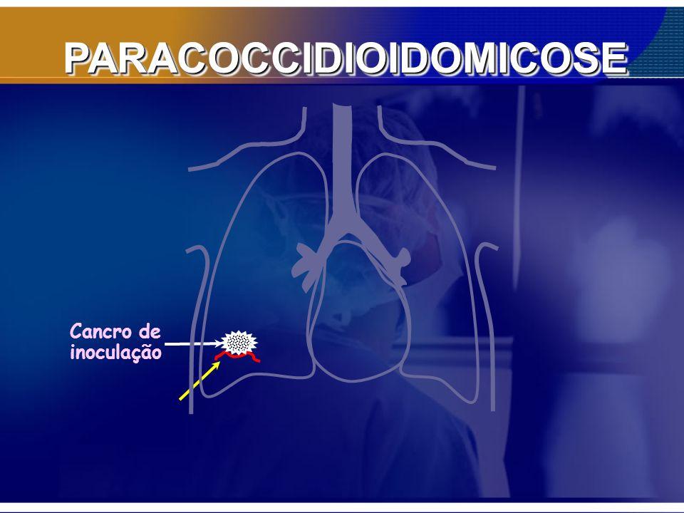 PARACOCCIDIOIDOMICOSE Formas clínicas: Paracoccidioidomicose infecção: Infecção assintomática ou subclínica Paracoccidioidomicose doença: Forma aguda/subaguda (tipo juvenil) -até 30-35 anos Forma crônica (tipo adulto): + 90% 30-60 anos pulmão em mais de 90% Unifocal (20 – 30%) –Adinamia, emagrecimento, febre, tosse, dispnéia, alterações RX – (infiltrado reticulonodular gt 2/3 sup, hipertransparencia bibasal –Doença pulmonar crônica Multifocal ( 70 – 80%) pele, mucosa- estomatite moriforme), faringe, laringe, gengivas, suprarenais, SNC...