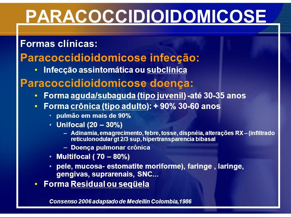 PARACOCCIDIOIDOMICOSE Paracoccidioidomicose e SIDA Pouco mais de 100 casos relatados > Aguda e disseminada concomitante com a crônica > Cd4, 200 Ac Pb positivo em somente 60% Manter tratamento indefinido sê CD4 < 200 e SIDA avançada Sê SIDA controlada : negativação da carga viral e CD4 > igual 200 – considerar suspender se atingir critérios de cura