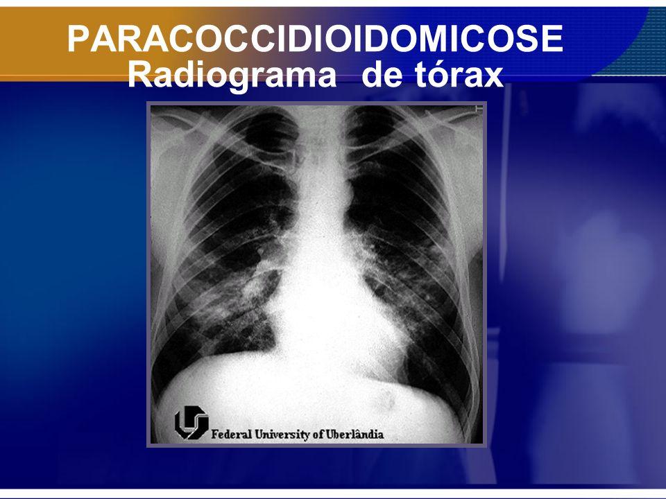 PARACOCCIDIOIDOMICOSE Tomografia de tórax