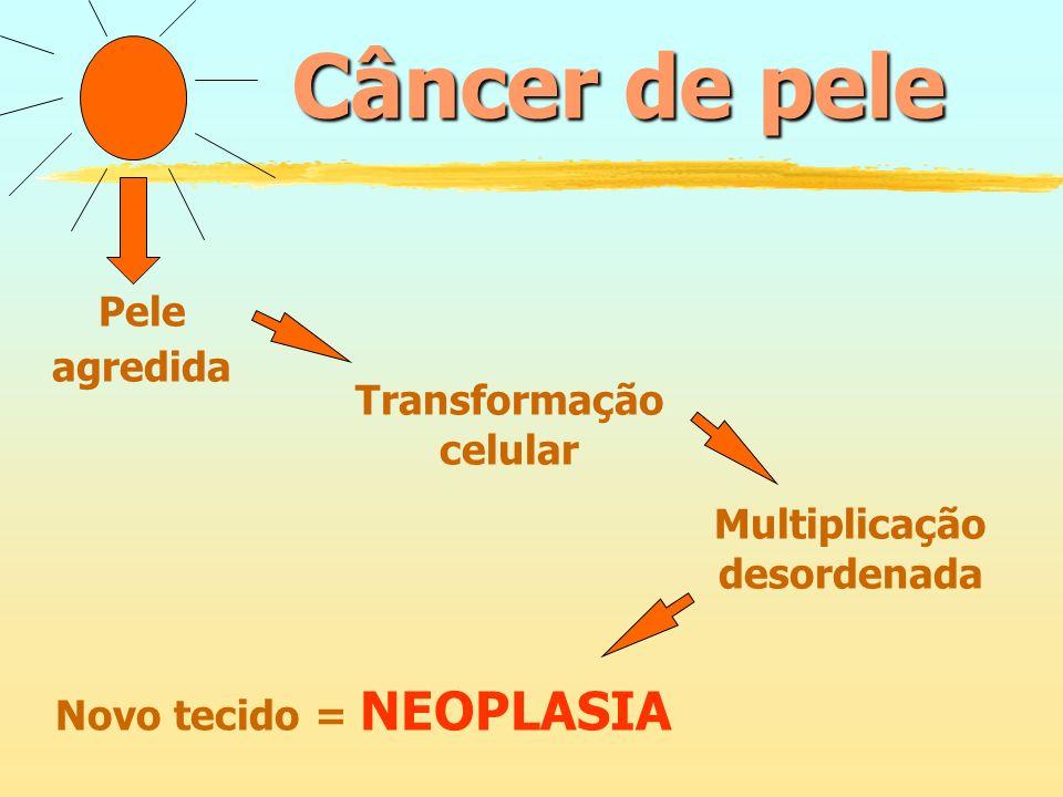 Câncer de pele Pele agredida Transformação celular Multiplicação desordenada Novo tecido = NEOPLASIA