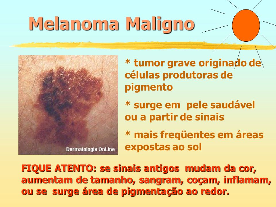 Melanoma Maligno * tumor grave originado de células produtoras de pigmento * surge em pele saudável ou a partir de sinais * mais freqüentes em áreas e