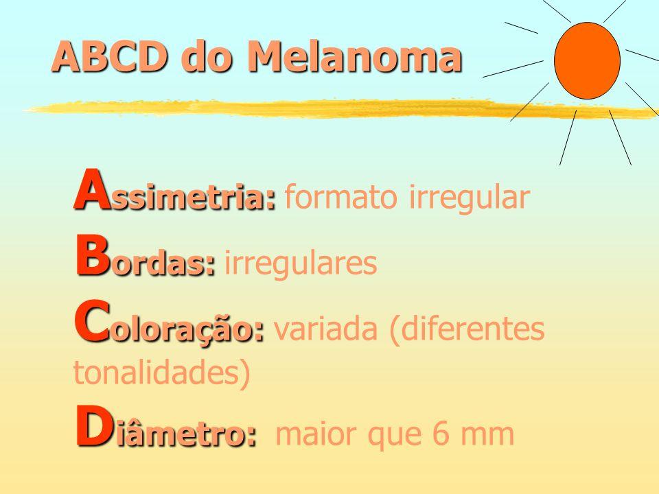 ABCD do Melanoma A ssimetria: A ssimetria: formato irregular B ordas: B ordas: irregulares C oloração: C oloração: variada (diferentes tonalidades) D