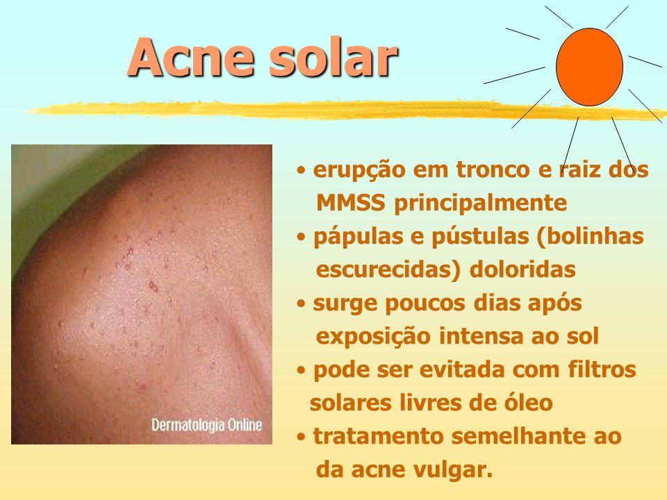 Acne solar erupção em tronco e raiz dos MMSS principalmente pápulas e pústulas (bolinhas escurecidas) doloridas surge poucos dias após exposição inten