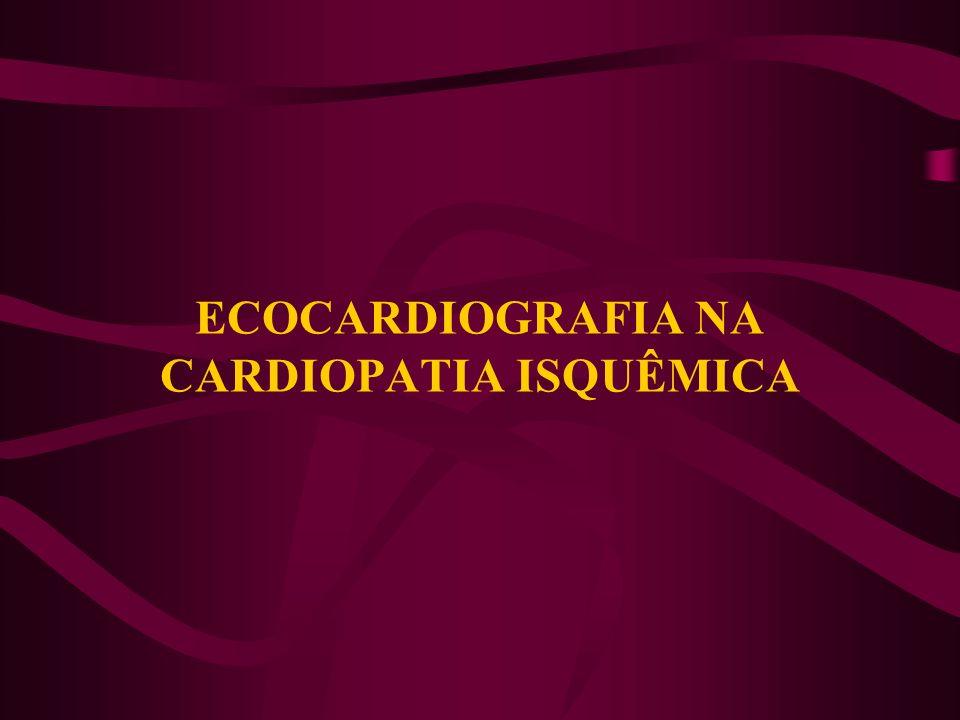 Ecocardiografia de Estresse(Dobutamina) Resposta Isquêmica c/ baixa dose - estenose crítica Resposta isquêmica c/ alta dose - estenose >50%.