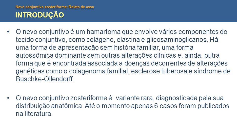 Nevo conjuntivo zosteriforme: Relato de caso INTRODUÇÃO O nevo conjuntivo é um hamartoma que envolve vários componentes do tecido conjuntivo, como col