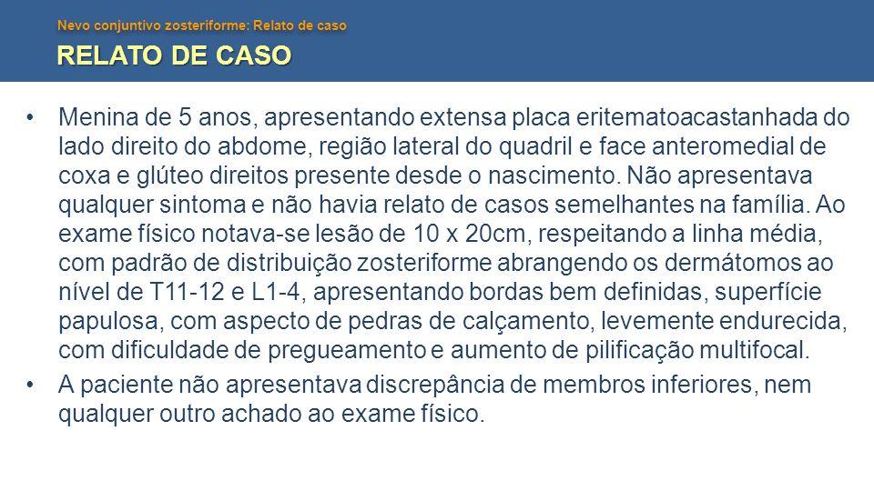Nevo conjuntivo zosteriforme: Relato de caso RELATO DE CASO Menina de 5 anos, apresentando extensa placa eritematoacastanhada do lado direito do abdom