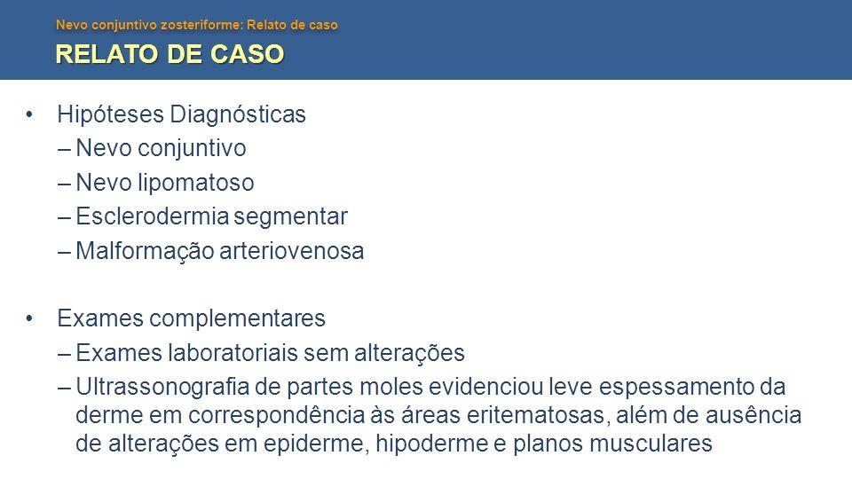 Nevo conjuntivo zosteriforme: Relato de caso RELATO DE CASO Hipóteses Diagnósticas –Nevo conjuntivo –Nevo lipomatoso –Esclerodermia segmentar –Malform