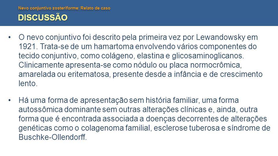 Nevo conjuntivo zosteriforme: Relato de caso DISCUSSÃO O nevo conjuntivo foi descrito pela primeira vez por Lewandowsky em 1921. Trata-se de um hamart