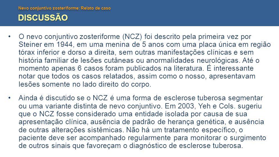 Nevo conjuntivo zosteriforme: Relato de caso DISCUSSÃO O nevo conjuntivo zosteriforme (NCZ) foi descrito pela primeira vez por Steiner em 1944, em uma
