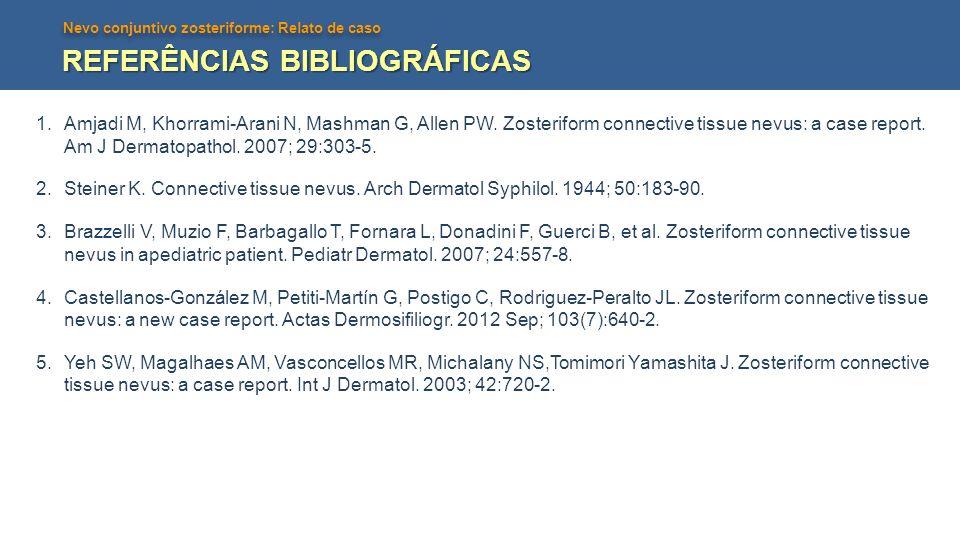 Nevo conjuntivo zosteriforme: Relato de caso REFERÊNCIAS BIBLIOGRÁFICAS 1.Amjadi M, Khorrami-Arani N, Mashman G, Allen PW. Zosteriform connective tiss