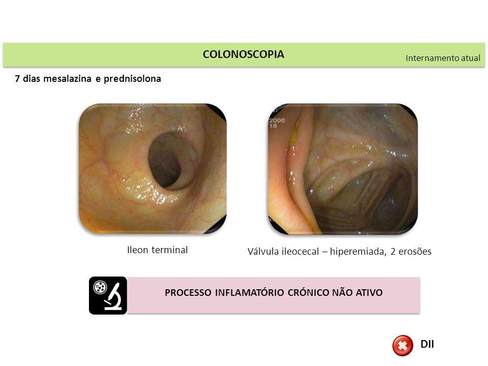 COLONOSCOPIA Ileon terminal Válvula ileocecal – hiperemiada, 2 erosões Internamento atual DII PROCESSO INFLAMATÓRIO CRÓNICO NÃO ATIVO 7 dias mesalazin