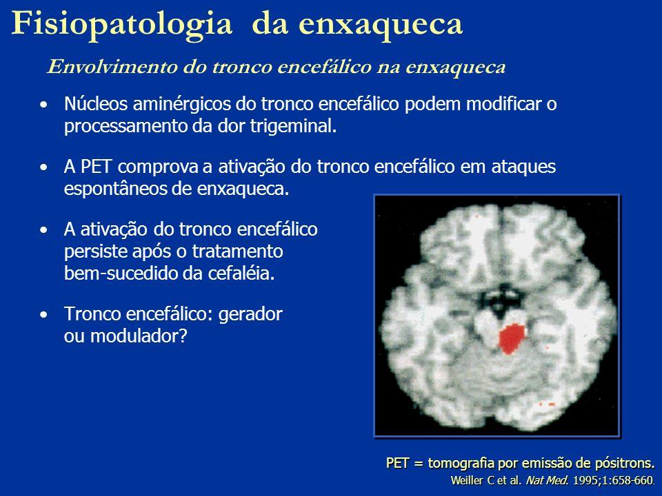 Núcleos aminérgicos do tronco encefálico podem modificar o processamento da dor trigeminal. A PET comprova a ativação do tronco encefálico em ataques