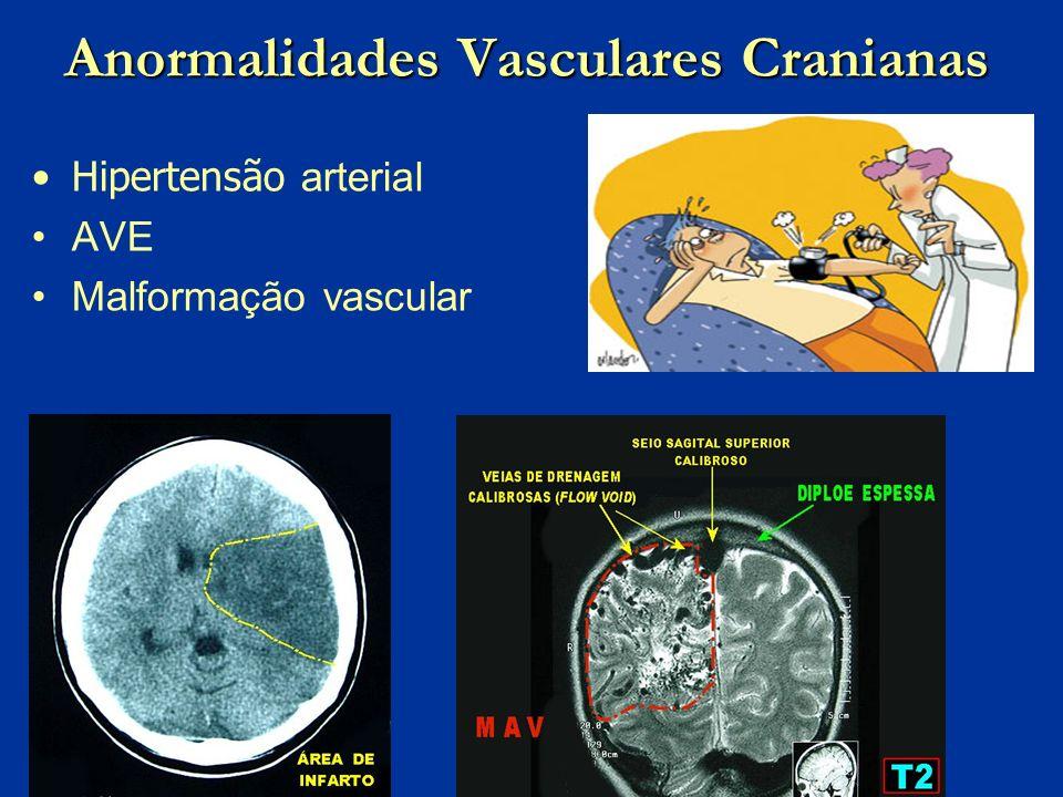 Anormalidades Vasculares Cranianas Hipertensão arterial AVE Malformação vascular