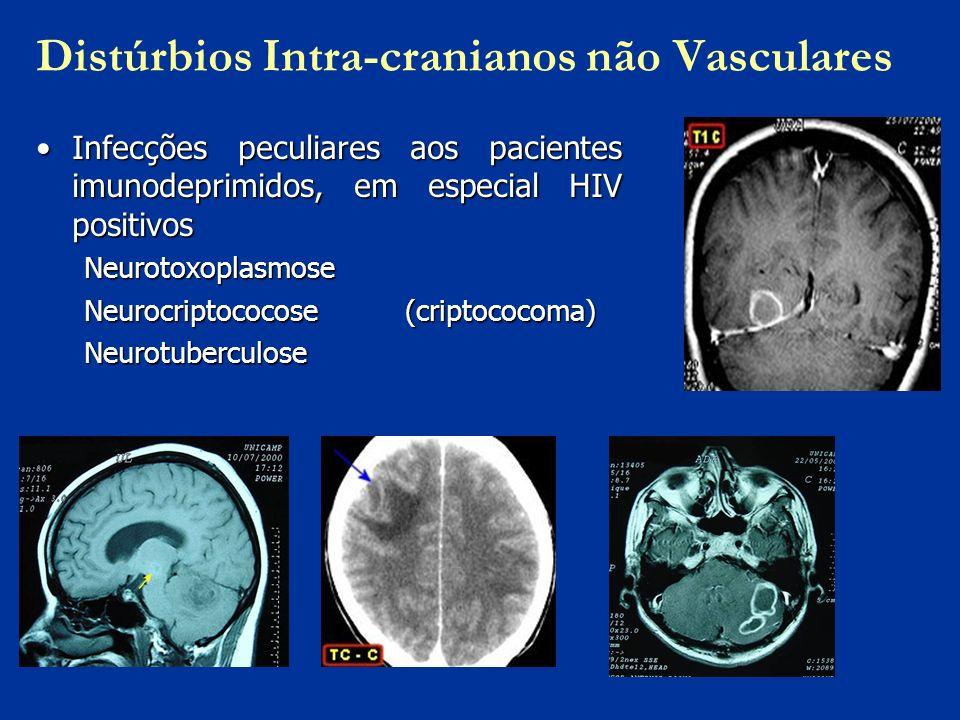 Distúrbios Intra-cranianos não Vasculares Infecções peculiares aos pacientes imunodeprimidos, em especial HIV positivosInfecções peculiares aos pacien