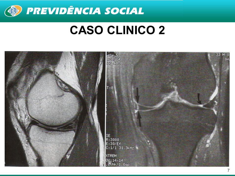 8 Estudo prospectivo 72 pacientes consecutivos submetidos à artroscopia do joelho para meniscectomia parcial, sinovectomia, remoção de corpos livres ou combinações Diário pré-operatório e com 1,2,3,4,8,12,16,20 e 24 semanas pós op IKDC para nível de atividade RESULTADOS: –PRÉ OP: 88% DESCREVERAM RESTRIÇÃO PARA O TRABALHO –2 SEMANAS: 74%; 4 SEMANAS: 38%; 20 SEMANAS: 4% (p=0,039) –82% RETORNARAM À ATIVIDADE LEVE COMO ANDAR, TRABALHO DOMESTICO, JARDINAGEM COM 1 SEMANA; 94% COM 2 SEMANAS E 100% COM 4 SEMANAS CONCLUSÃO: –A maioria dos pacientes não teve restrição laboral após 4 semanas de artroscopia
