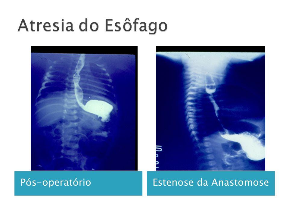 Pós-operatórioEstenose da Anastomose