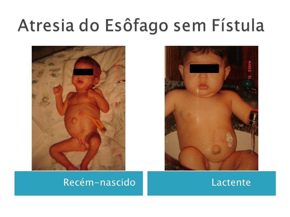 Recém-nascido Lactente