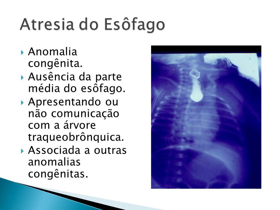 Classificação de Gross modificada: Tipo A: AE sem fístula-(8%).