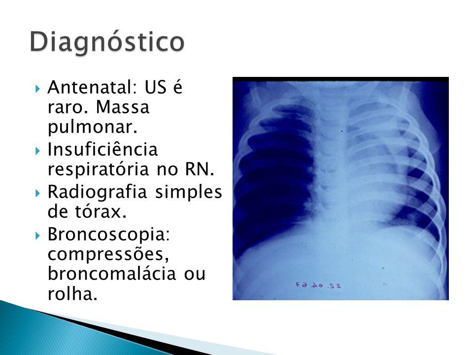Antenatal: US é raro.Massa pulmonar. Insuficiência respiratória no RN.