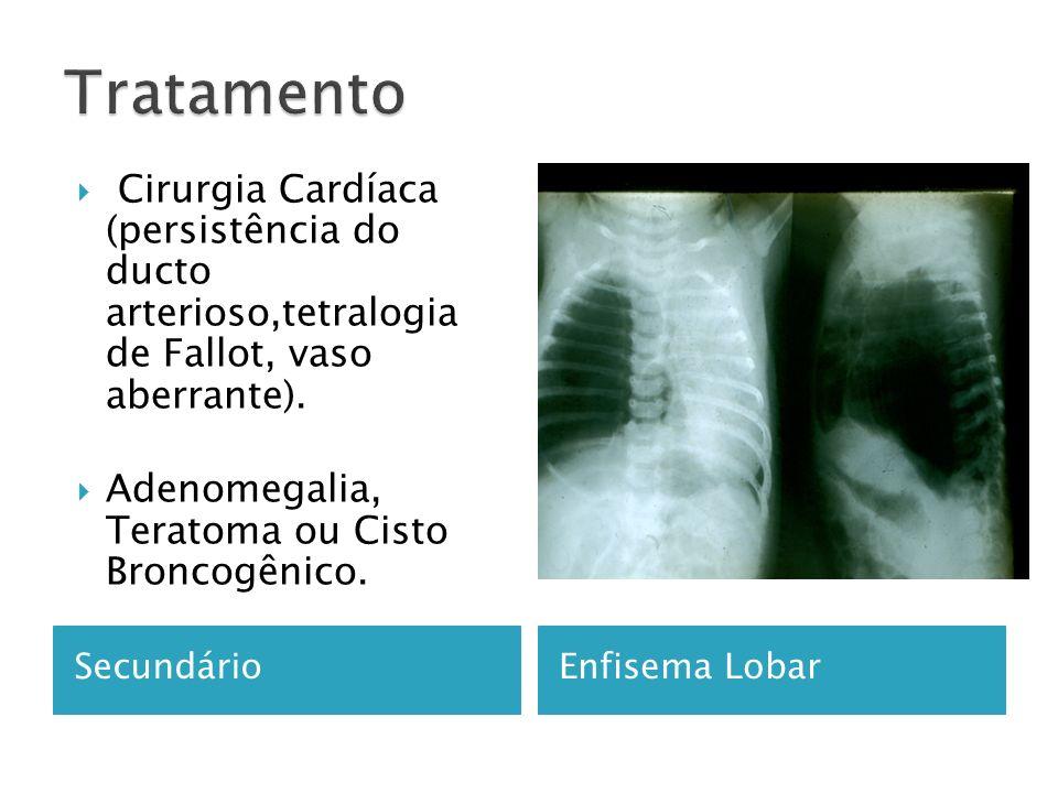 SecundárioEnfisema Lobar Cirurgia Cardíaca (persistência do ducto arterioso,tetralogia de Fallot, vaso aberrante).