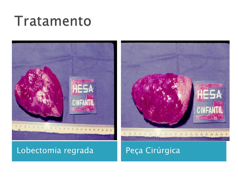 Lobectomia regradaPeça Cirúrgica