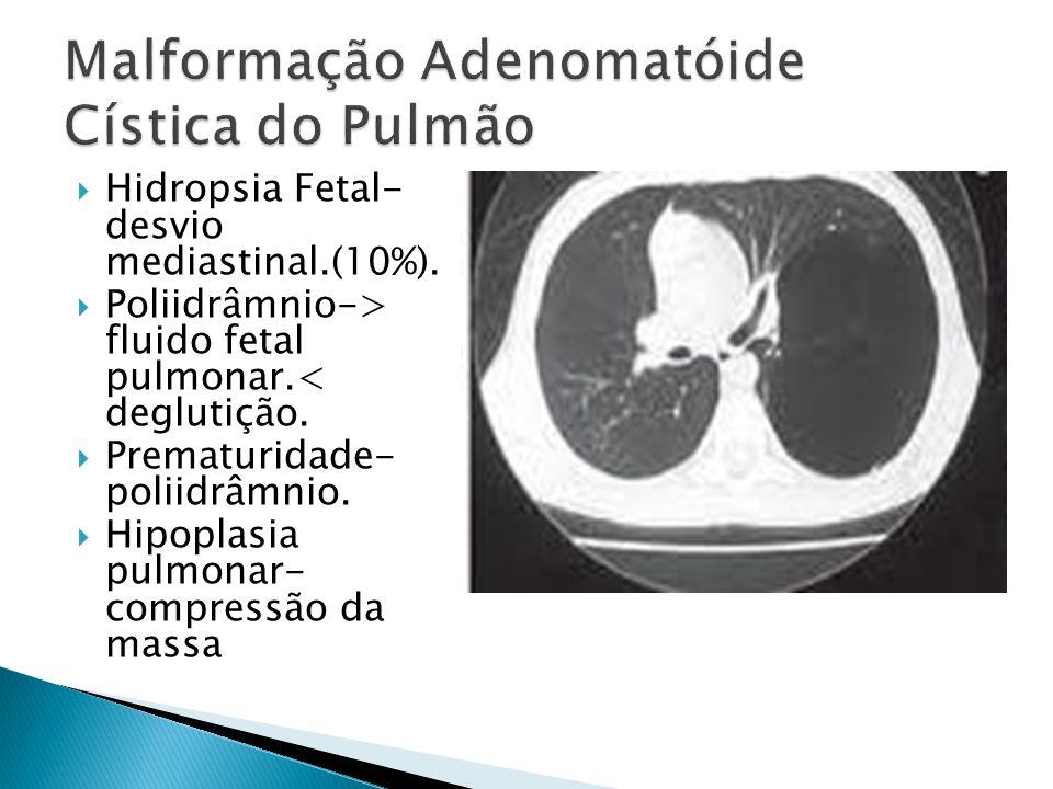 Hidropsia Fetal- desvio mediastinal.(10%).Poliidrâmnio-> fluido fetal pulmonar.< deglutição.
