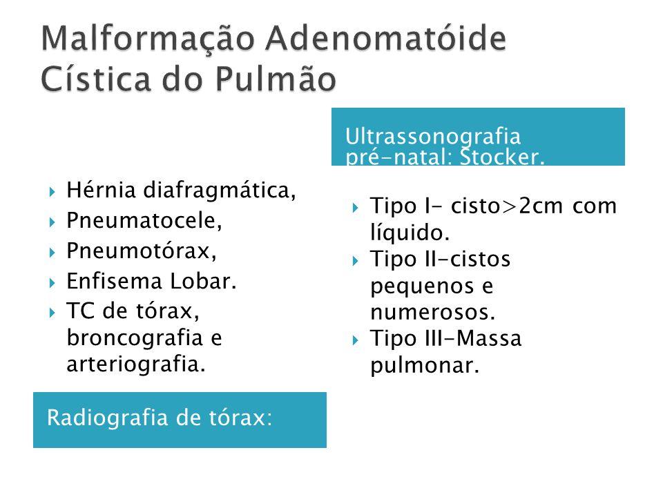 Radiografia de tórax: Ultrassonografia pré-natal: Stocker.